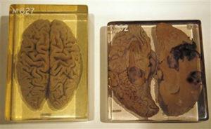 Рубрика Топ 10: интересные факты о нашем мозге BroDude.ru