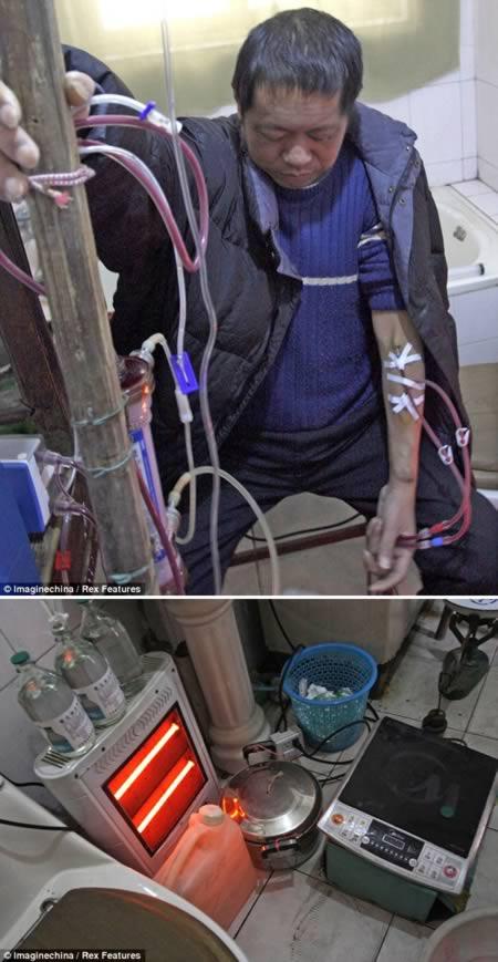 самодельный аппарат для диализа