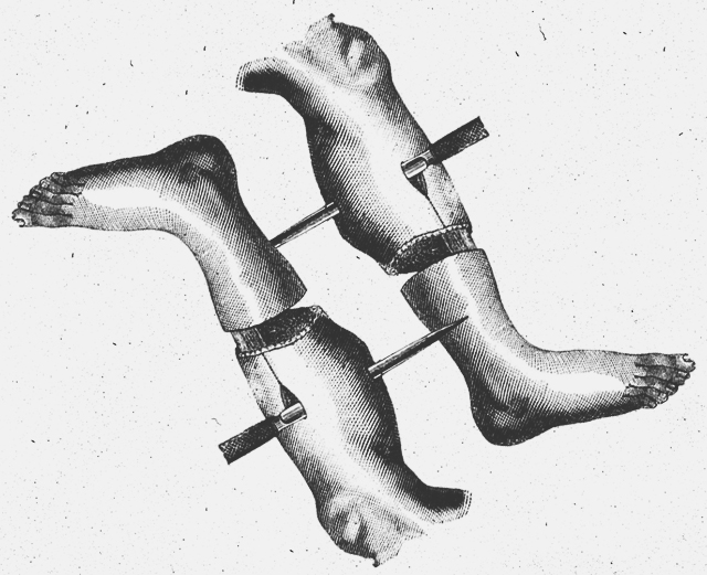 8 ранних признаков дегенерации мышц, которые ты не должен игнорировать