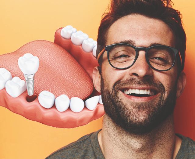 5 преимуществ швейцарских зубных имплантатов Straumann