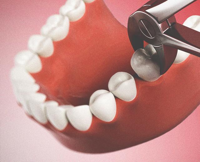Удаление зубов: профессиональное мнение стоматологов